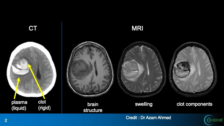 Images of brain CT and MRI scans